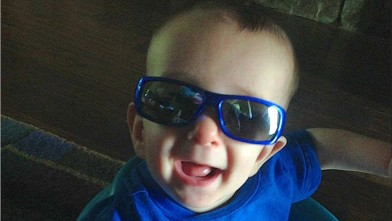 Six-month-old Ryan Burke had surgery to reshape his skull.