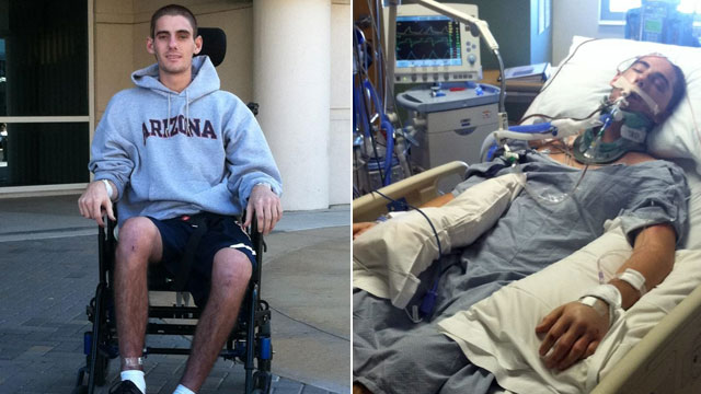 PHOTO: Sam Schmid, a 21-year-old college student from Arizona, astounded doctors by recovering from traumatic brain injuries just hours before being readied to be an organ donor.