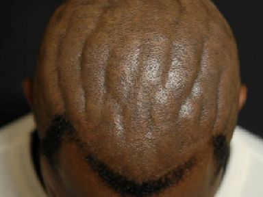 Surgery for 'Brainy' Scalp Changes a Man's Life