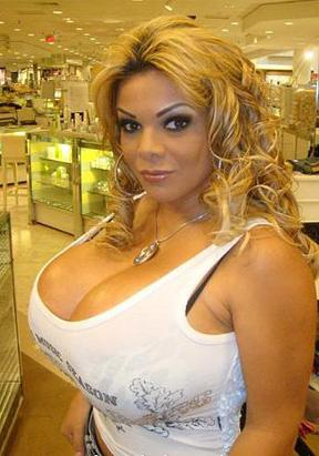 Extreme Plastic Surgery Picture | PHOTOS: 7 Cases of
