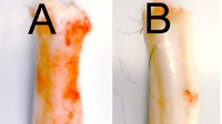 Photo: A new study in mice that shows a potential treatment for spinal injuries by shutting off a gene that allows cells to die off in the hours following the injury, causing paralysis