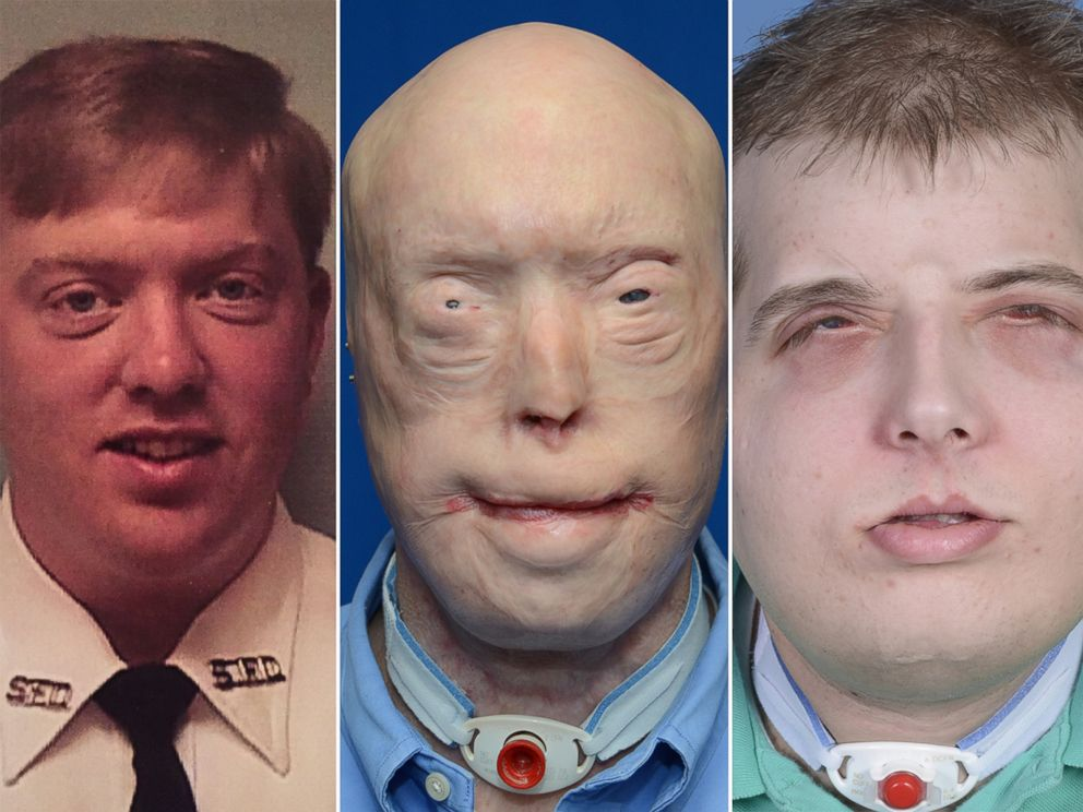 PHOTO: Pat Hardison is shown here before the 2001 fire (left), then before his face transplant surgery (center) and what he looks like today after surgery (right).