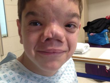 Solider Raises Funds, Again, for Boy's Face Reconstruction