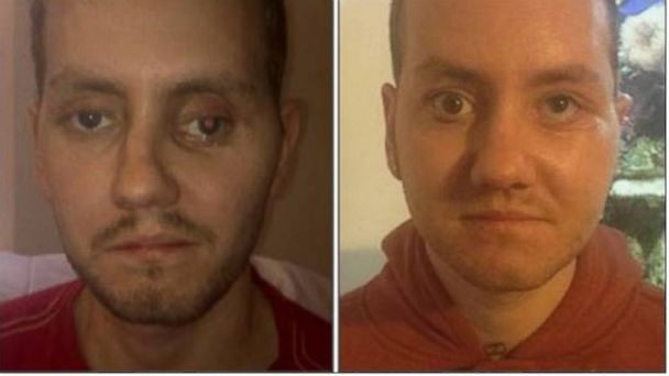 ht stephen powers after kb 140313 16x9 608 Mans Face Rebuilt With 3D Printer After Crash
