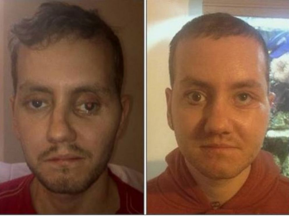 PHOTO: Stephen Power, a 29-year-old dad from Cardiff, had his face reconstructed with parts made from a 3D printer after being injured in a motorcycle accident.