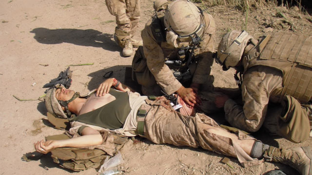 PHOTO: Marine Sgt. Ron Strang lost half of his thigh muscle to shrapnel in Afghanistan.
