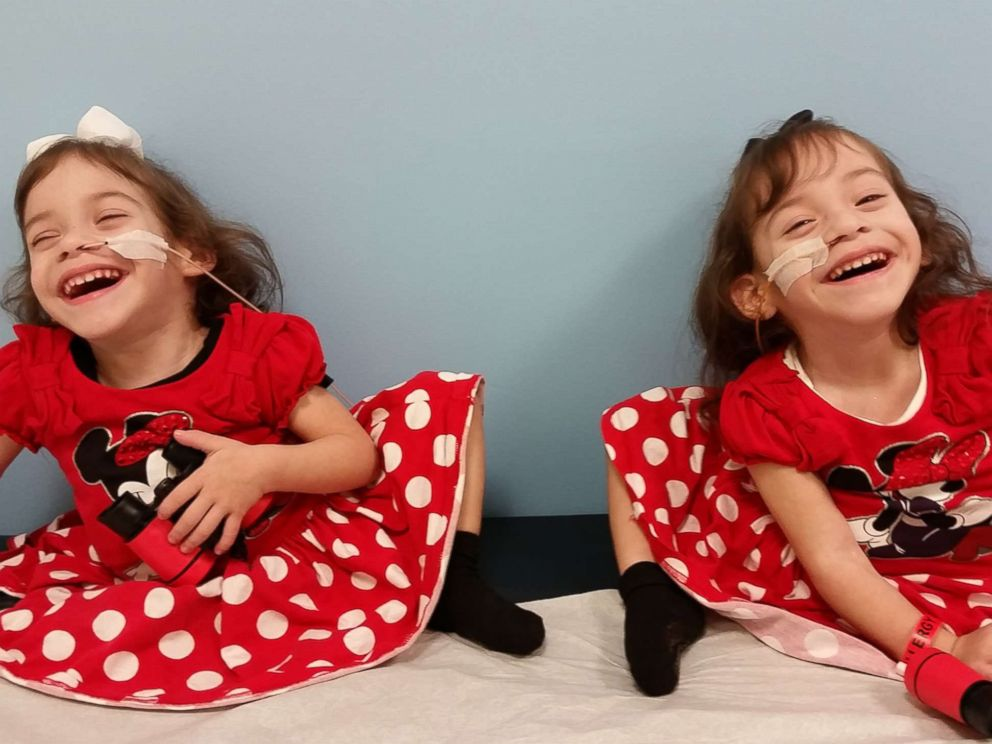 Formerly conjoined twins Eva and Erika Sandoval are seen here after their separation surgery.