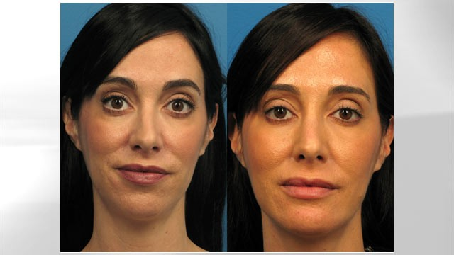 "PHOTO: Triana Lavey, before and after plastic surgery to fix her ""weak chin."" Lavey, a 37-year-old television producer in Los Angeles, got the surgery because she didn't like how she looked on Skype and Facebook."