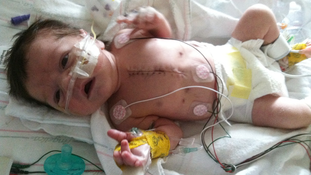 "PHOTO: William ""Will"" Donovan had heart surgery at NYU Langone Medical Center when he was three days old. Three weeks later, Superstorm Sandy forced the hospital to evacuate."