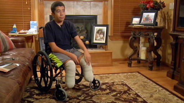 VIDEO: Kaleo Niko, 13, was born with a painful muscular condition known as arthrogryposis.