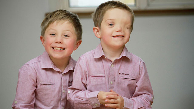 PHOTO: Twins Oliver, left, and Harry Machin pose at home in Stoke-On-Trent, England.