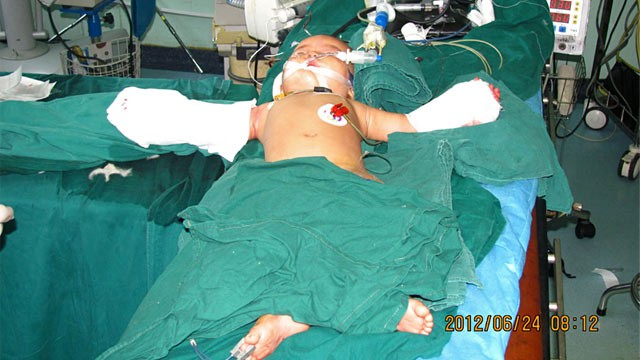 PHOTO: Baby girl recovering in hospital after hands reattached