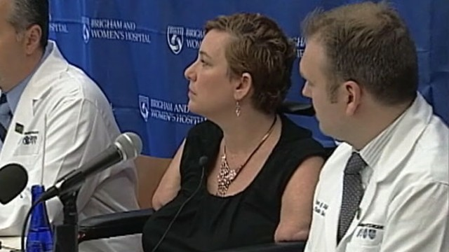VIDEO: Katy Hayes, 44, had her limbs amputated as a result of a 2010 bacterial infection.