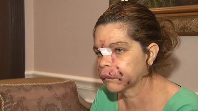 Video: Florida Woman Blames Spa for Botched Procedure