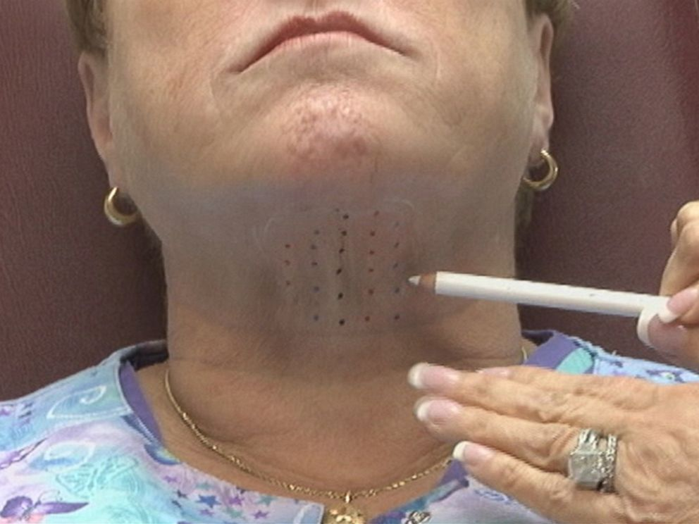 PHOTO: The FDA has approved a new drug that could remove the double-chin.