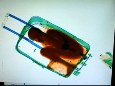 Watch:  X-Ray Scan Uncovers Boy Smuggled in a Suitcase