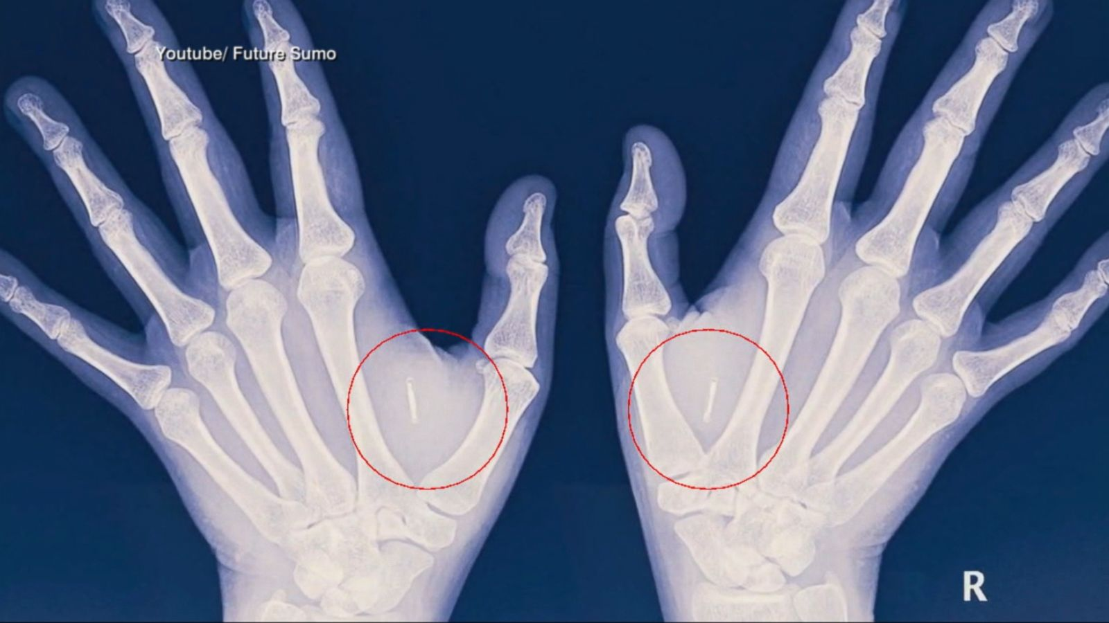 A woman in Australia got micro-chip implants beneath her skin so she can make payments, log into her computer and lock her doors with the wave of her hand.