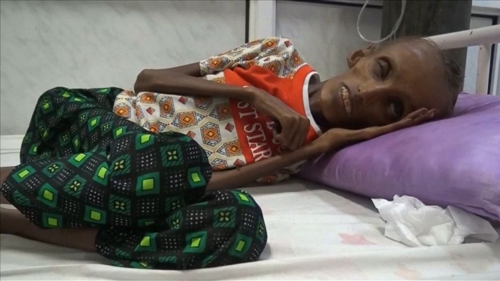 Footage Of Starving Teen In Yemen Shows The Horrors Of War