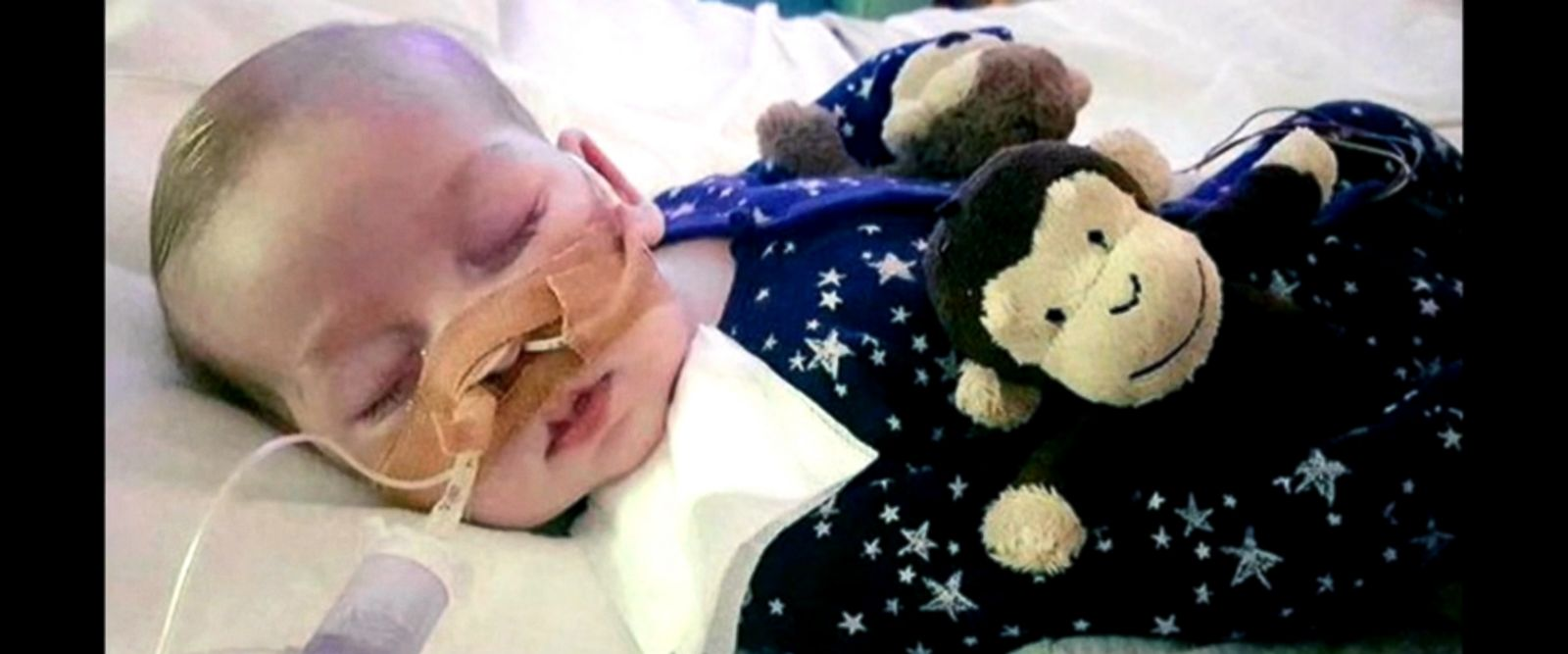 VIDEO: Terminally ill British infant Charlie Gard, whose parents' fight for his life drew worldwide attention, has died, according to a family spokesperson.