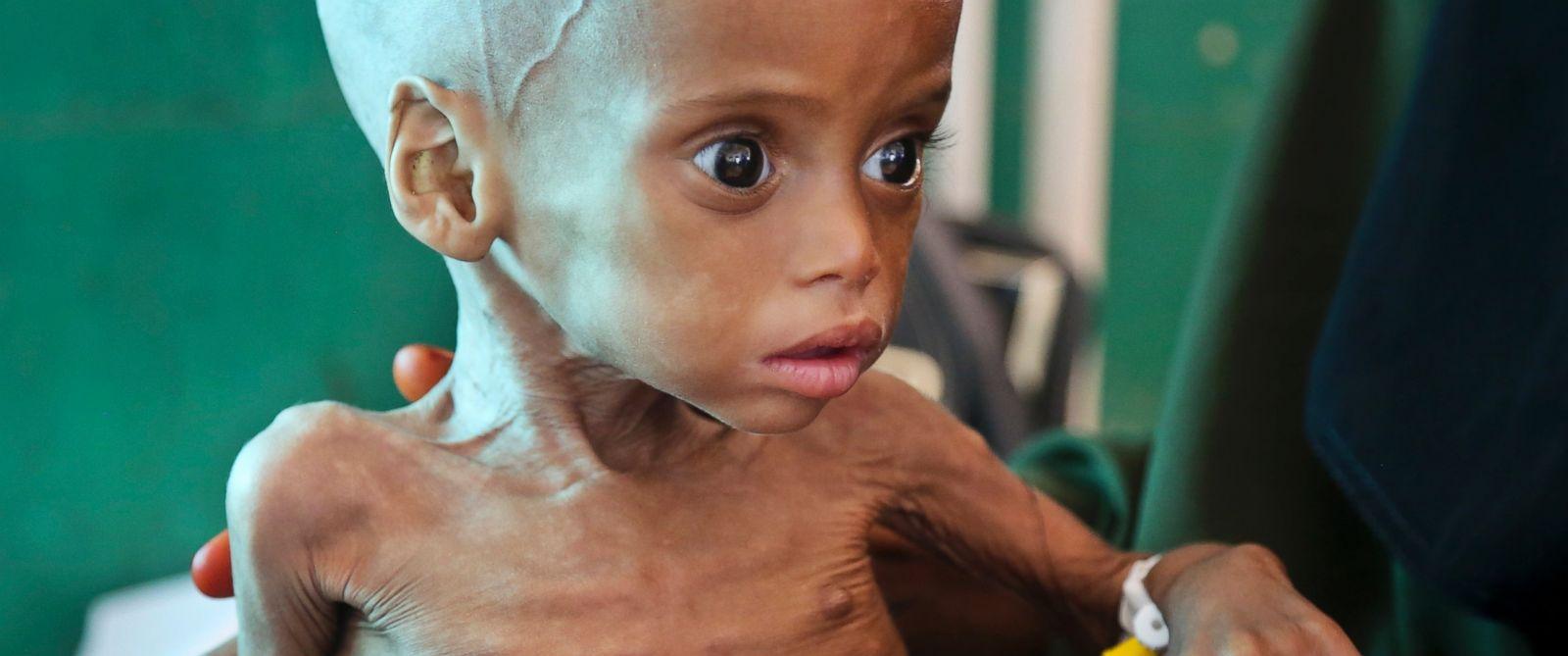 PHOTO: A malnourished child is treated at the Banadir Hospital in Mogadishu, Somalia, on March 11, 2017.