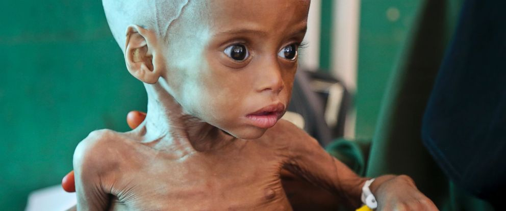 PHOTO: A malnourished child is treated at the Banadir Hospital in Mogadishu, Somalia, on March 11, 2017.