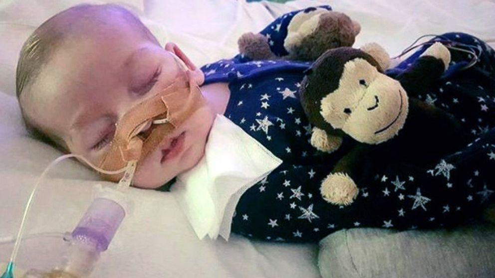 Baby Charlie Gard's medical condition: What you need to know