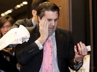 PHOTO: U.S. Ambassador to South Korea Mark Lippert leaves a lecture hall for a hospital in Seoul, South Korea, March 5, 2015, after being attacked by a man.