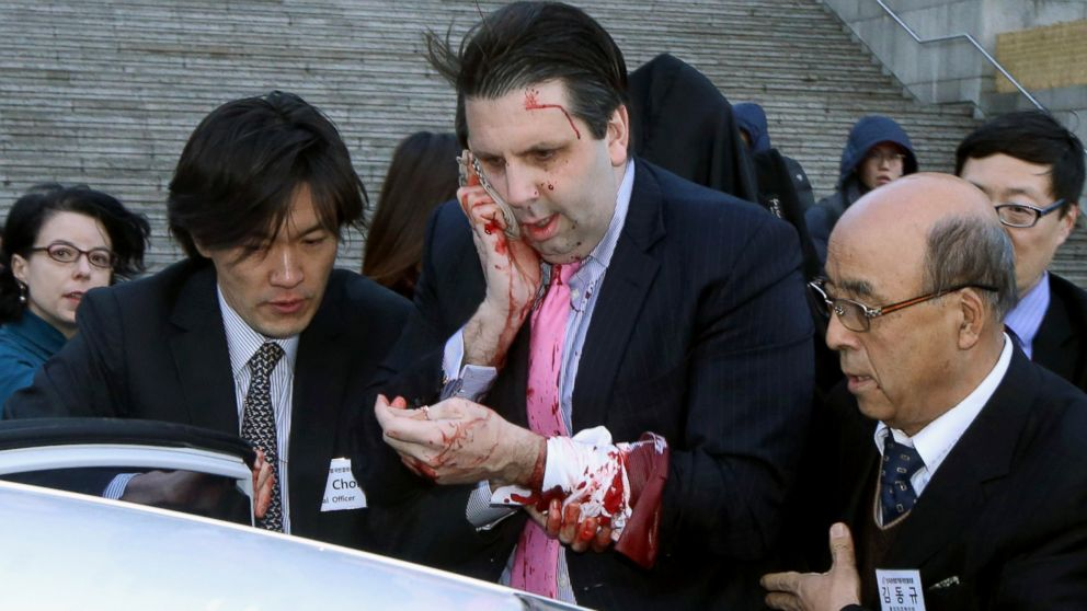 Ap mark lippert hurt jef 150304 16x9 992