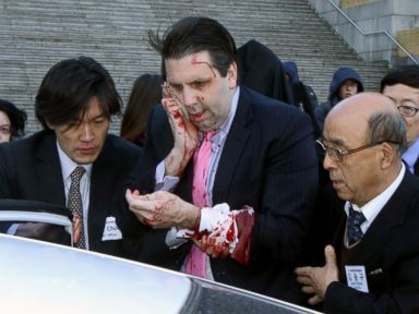 US Ambassador Attacked in South Korea
