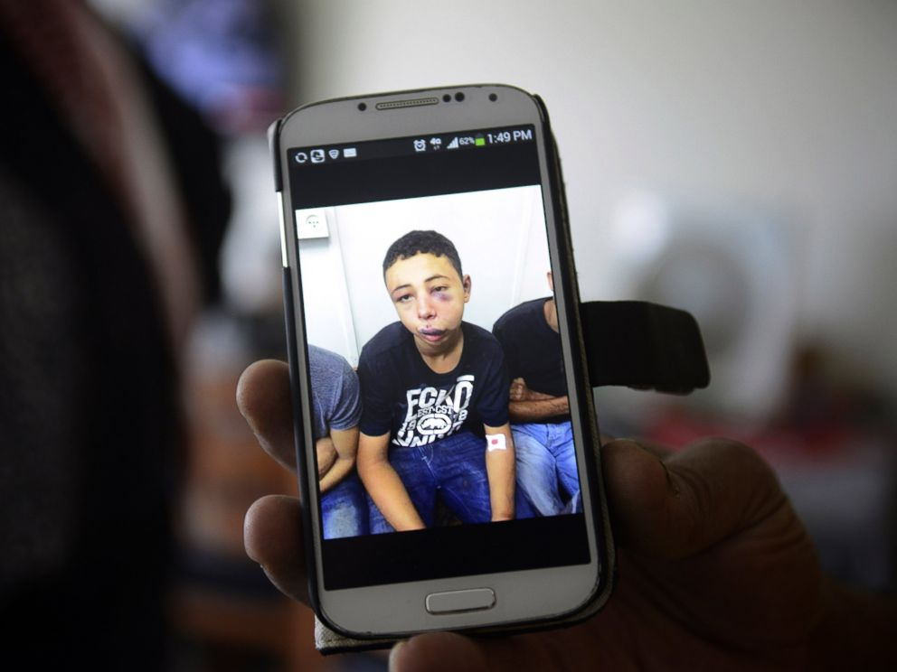PHOTO: Suha Abu Khdeir shows a mobile phone photo of her son Tariq Abu Khdeir, taken in a hospital after he was beaten and arrested by the Israeli police during clashes Thursday, in Jerusalem, Saturday, July 5, 2014.