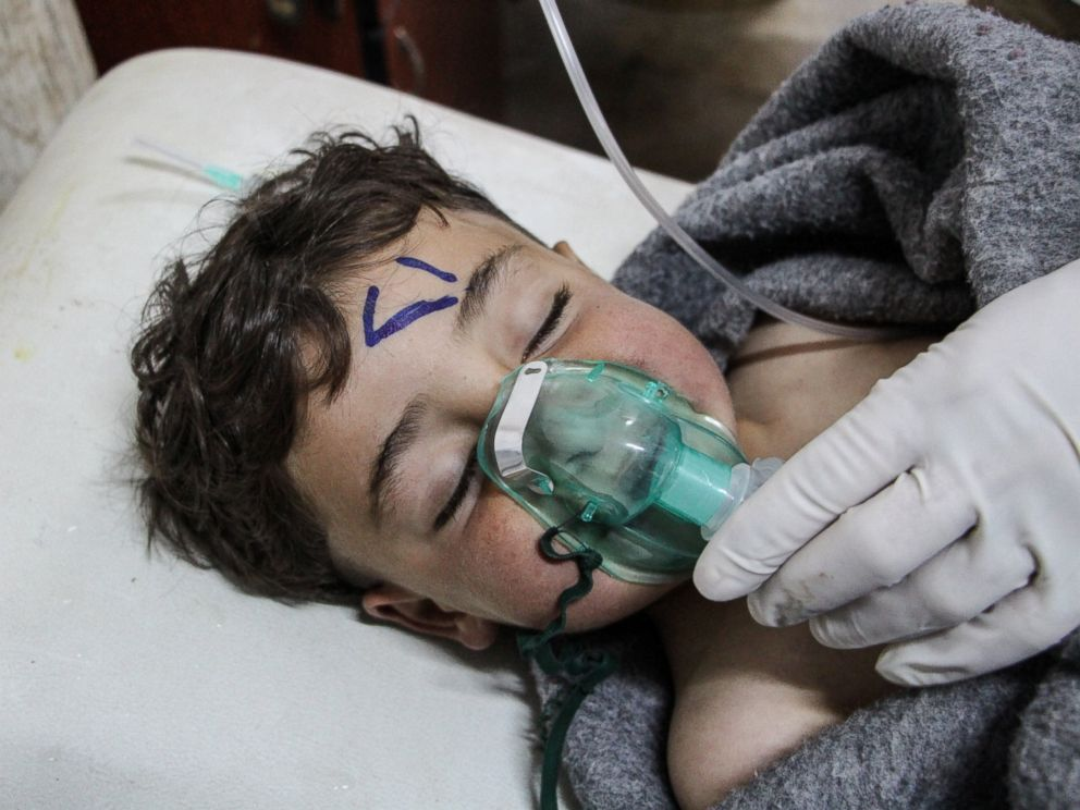 PHOTO: A Syrian child receives treatment after an alleged chemical attack at a field hospital in Saraqib, Idlib province, Syria, April 4, 2017.