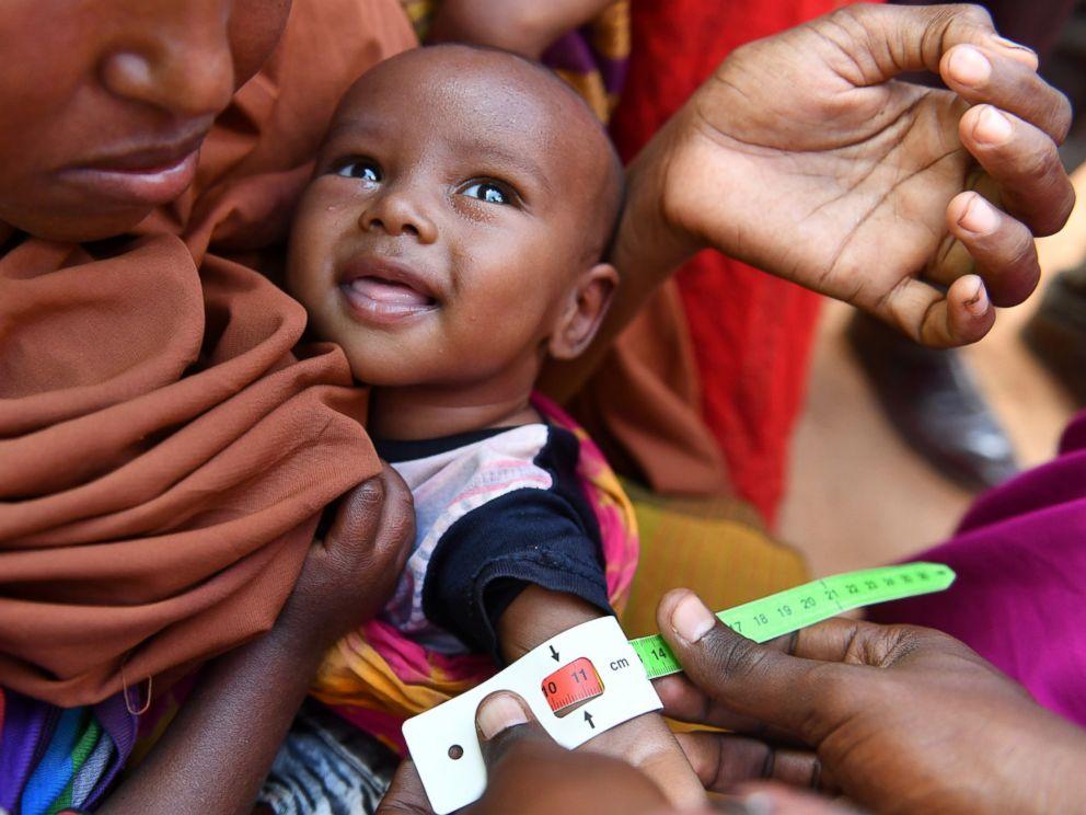 14m children in somalia to suffer acute malnutrition in