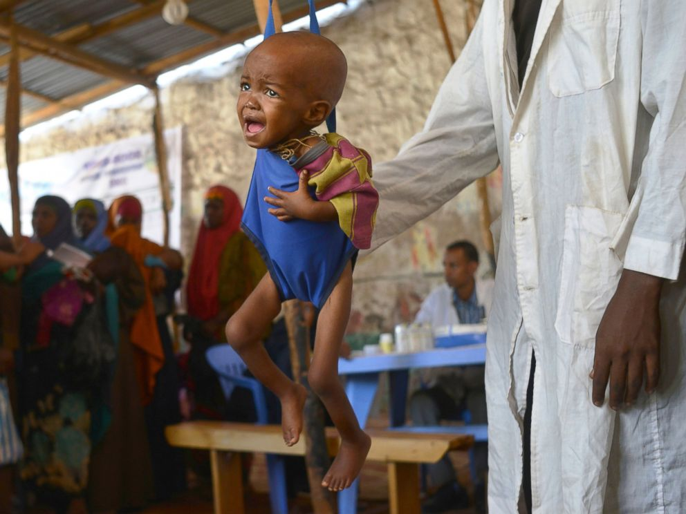 PHOTO: A malnourished child is processed by an aid worker for a UNICEF, funded health program catering to children displaced by drought, at a facility in Baidoa town, the capital of Bay region of south-western Somalia, on March 15, 2017.