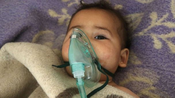 PHOTO: A Syrian child receives treatment following a suspected toxic gas attack in Khan Sheikhun, a rebel-held town in the northwestern Syrian Idlib province, on April 4, 2017.