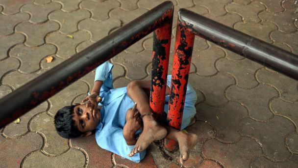 GTY lakhan kale boy tied to bus stop pole jt 140525 16x9 608 Grandmother Tethers Disabled Boy to Bus Stop in India