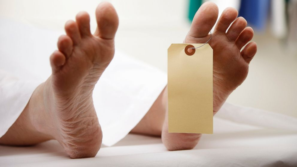 PHOTO: A morgue rejected a body for being too fat.
