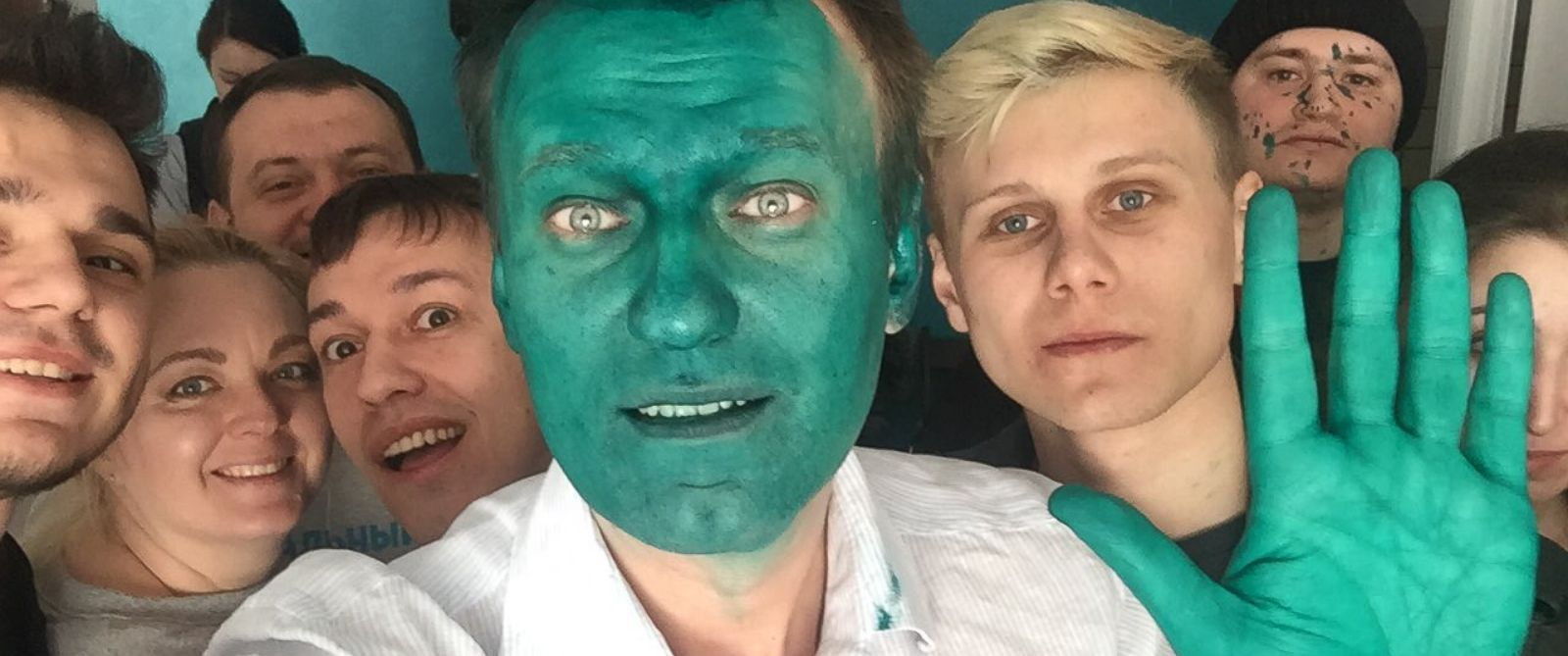 PHOTO: Alexei Navalny posted a photo after being doused with a dye that turned his hands and face green.