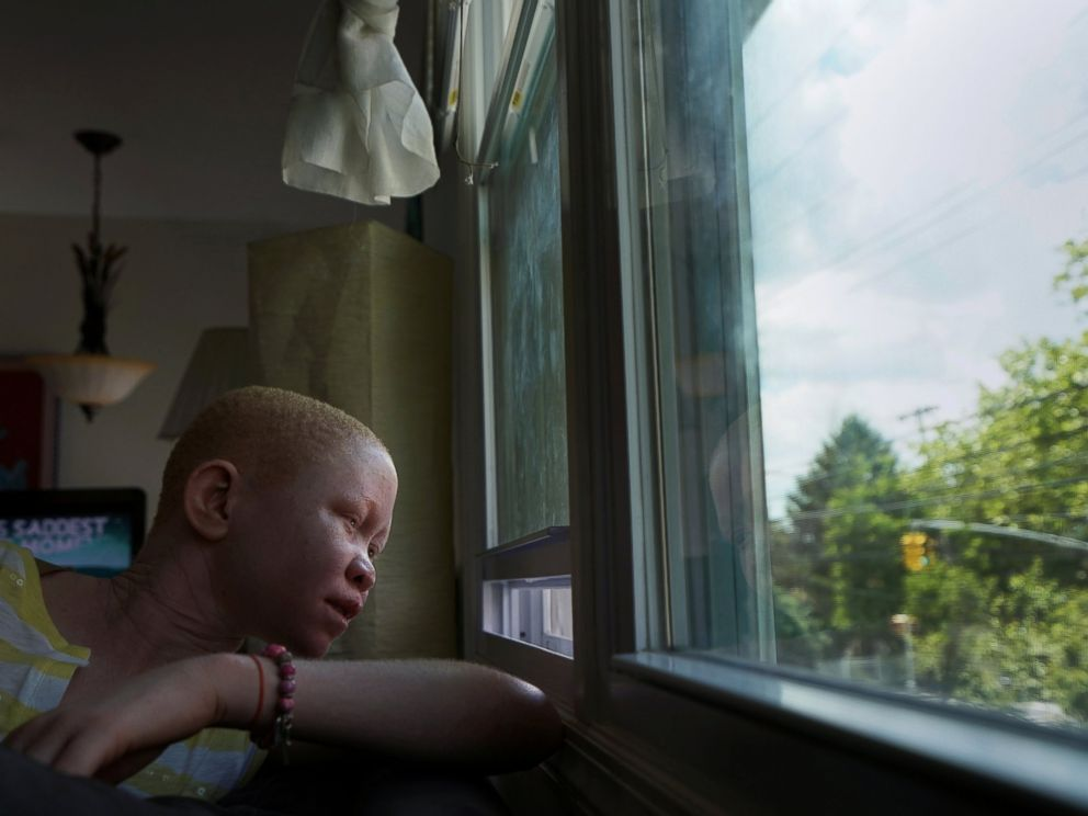 PHOTO: Pendo Noni, 16, a Tanzanian with albinism who had an arm chopped off in a witchcraft-driven attack, looks out of the window at the Global Medical Relief Fund house in the Staten Island borough of New York, June 2, 2017.