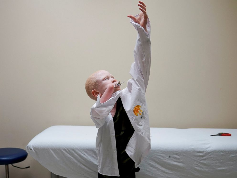 PHOTO: Baraka Lusambo, 7, a Tanzanian with albinism who had an arm chopped off in a witchcraft-driven attack, puts on his shirt during a prosthetic fitting while he sucks on his lollipop, at the Shriners Hospital in Philadelphia, May 30, 2017.