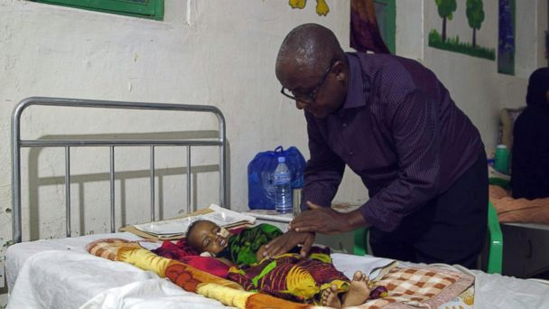 PHOTO: Dr. Yousef Ali treats a child at the Burao Nutrition Stabilization Center in Somaliland. He said the country was on the verge of famine.