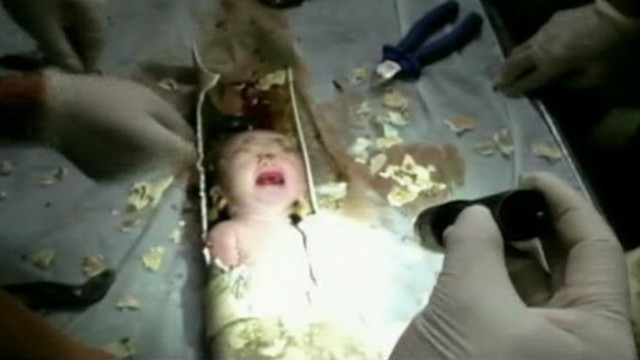 Abandoned Baby Rescued From Toilet Pipe Video Abc News