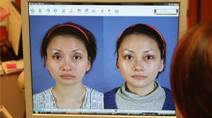 Photo: BK DongYang Plastic Surgery Clinic in South Korea