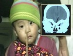 VIDEO: A young boy in China undergoes surgery to have a utensil removed from his nose.