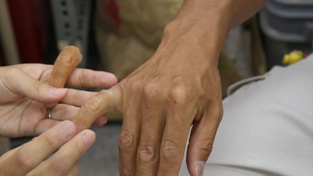 Video: Ex-Japanese Gangsters Turn to Prosthetics for Normal Life