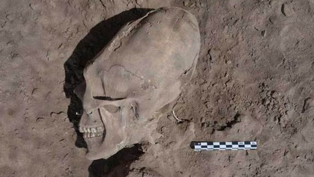 VIDEO: Researchers believe the deformations of human skulls were part of ancient ritual practice.