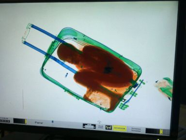 X-Ray Scan Uncovers Boy Smuggled in a Suitcase