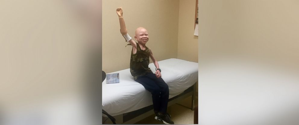 PHOTO: Baraka, a child from Tanzania whose arm was cut off because he has albinism, smiles as he tries on his new prosthetic arm at Shriners Hospital for Children.