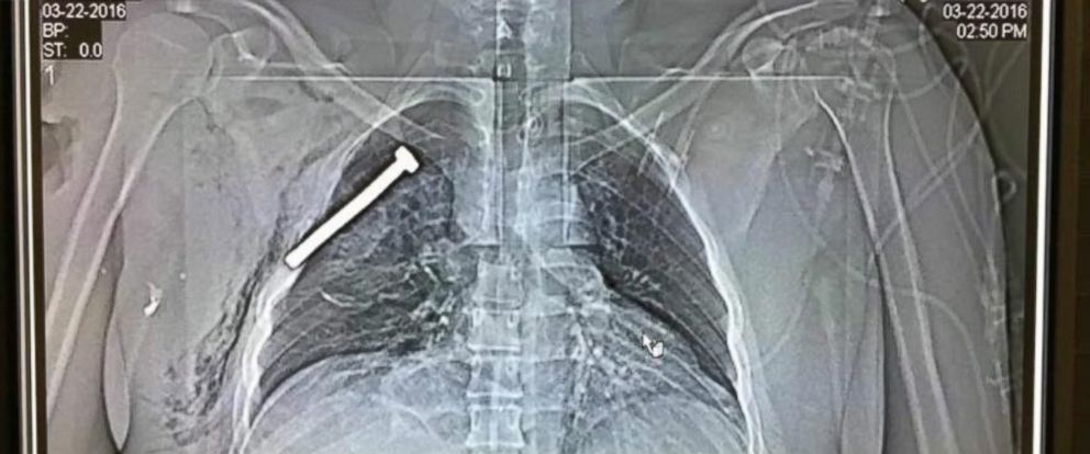 PHOTO: The x-ray image of a person injured during the Brussels terror attacks shows a big nail or screw in the chest of the patient treated at the Military Hospital in Neder-over-Heembeek in northern Brussels, March 22, 2016.