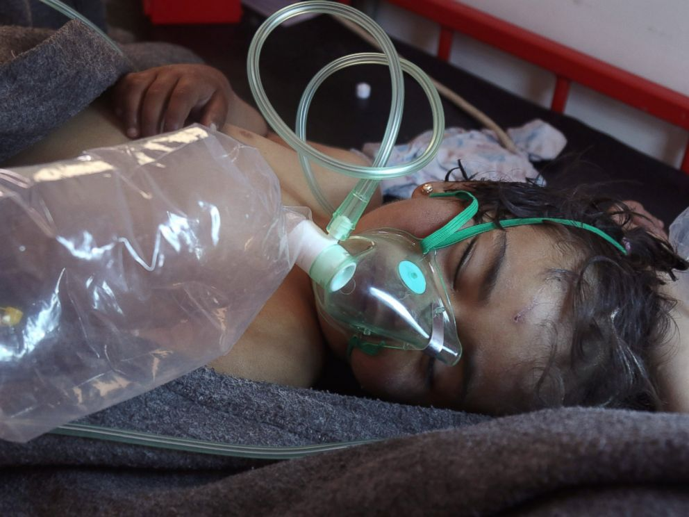 Syrian doctors describe treating children after suspected ...
