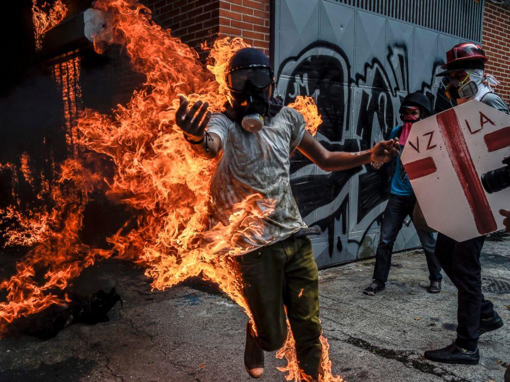 PHOTO: A demonstrator catches fire after the gas tank of a police motorbike exploded during clashes in a protest against Venezuelan President Nicolas Maduro, in Caracas on May 3, 2017.